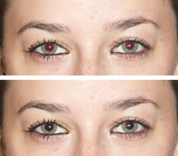 Automatic and accurate red eye removal with Cloudinary